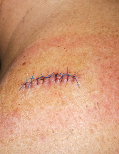 cicatriz<br/>